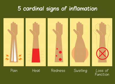 Inflammation Stages